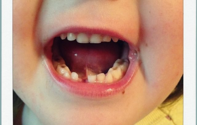 Mo's Lost Tooth   Wordless Wednesday via Mini Van Dreams